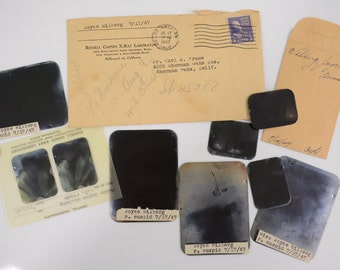 1947 Dental X-Rays from Hollywood California - Historical Medical Dentistry