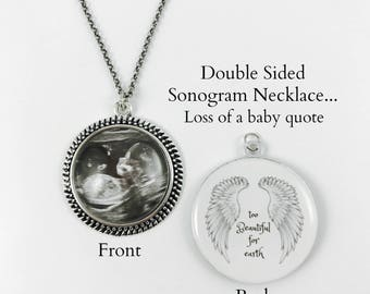 Miscarriage - Double Sided Pendant Necklace or Keychain - Sonogram/Photo on front - Quote on back - 5 finishes - Loss of Baby - In Memory