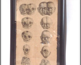 Aged reproduction Victorian medical skull deformities print in frame.