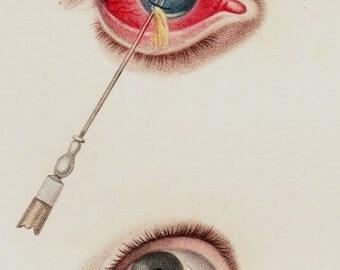 1818 Bizarre Antique EYES print, fine anatomy lithograph, Pupil, iris, eyeball, ocular globe surgery, original antique 198 years old
