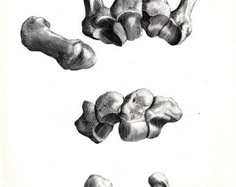 Book Plate of Albinus Anatomy. The Bones of the Hand. Metacarpals and Carpals. 1972.
