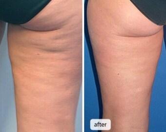 Cellulite blasting skin spa soap!