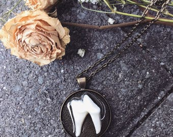 Real coyote tooth necklace