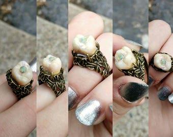 Human molar Opal ring!
