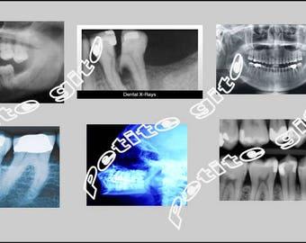 6 Miniature xrays  Orthodontist, Dentist, Medical Dental X-rays   -  Dollhouse 1/6      1/12     1/24     1/48      playscale miniature