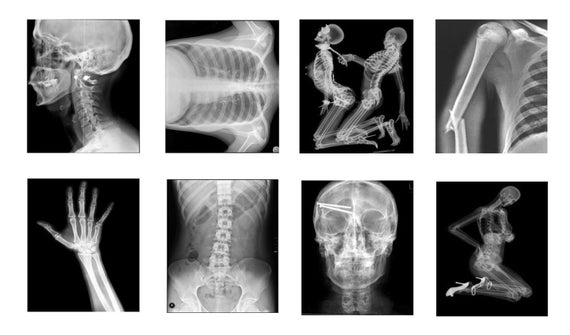 coma 103 x rays Ventional x-ray tubes leads to a higher spatial resolution and, as a result, to optimum detail detectability at the same time the system offers the power output of.