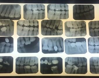 Lot - 25 Dental X-Rays (Radiographs)