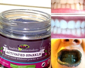 All Natural Whitening Teeth Powder - Organic Activated Charcoal Teeth Whitener - Remineralizing Tooth Whitening - Helps Prevent Tooth Decay