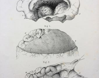 1831 Original Antique Anatomical Print by W. Money - Morbid Anatomy  - wall decor - home decor - Apoplexy - Pathology - Disease