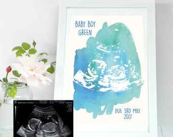 Baby Scan Preserve Print - Other colours available