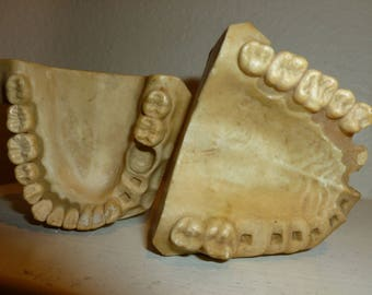 Vintage Dental Plaster Molds