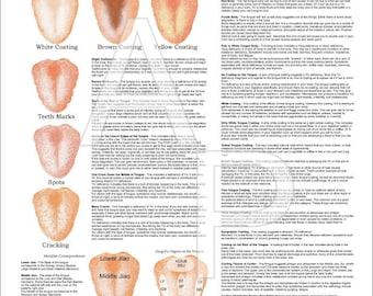 """Chinese Tongue Diagnosis Poster 18"""" X 24"""""""