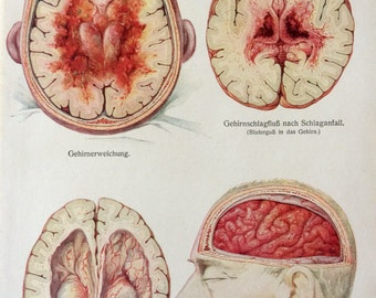 Vintage 1920s German Anatomy SKULL BRAIN DISEASE Dissection Cranium Medical Diagram Bookplate