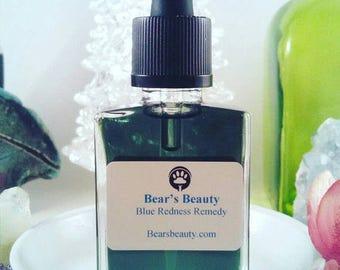 Blue Redness Remedy Super Serum | Willow Bark | Redness | Breakouts | Rosacea | Vegan Face Serum | Holistic Beauty | Natural Beauty