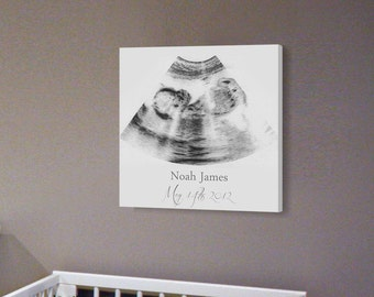 sonogram print nursery wall art a personalized ultrasound canvas frame ultrasound wall decor