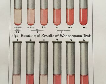 Wasserman test 1940s vintage medical illustration