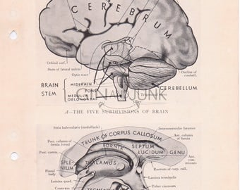 Vintage Anatomy Print, Human Brain Drawing, Skull lithograph, Medical Drawing, Surgical Diagram, Brain Print, from 1934.
