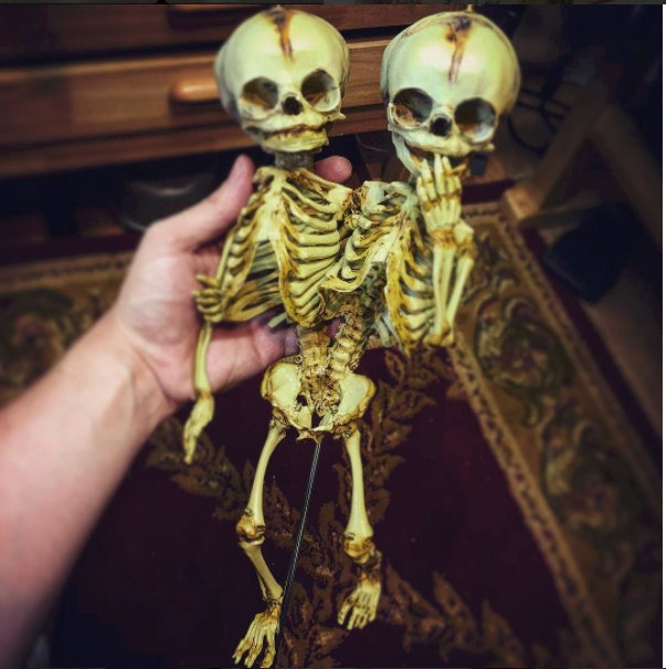 Sale Conjoined Twins Siamese Fetal Skeletons By