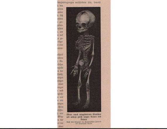 c. 1900 BABY SKELETON LITHOGRAPH - original antique print - human anatomy - fetal bones - skeletal system - medical science print
