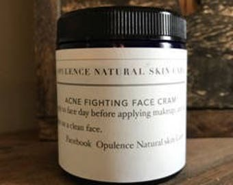 All natural acne fighting cream