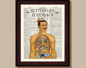 "Fine Art Print - ""Butterflies in Stomach "" 8.5"" x 11"", Vintage Anatomy Medical print, Nurse Graduation gift, Gastroenterologist gift"