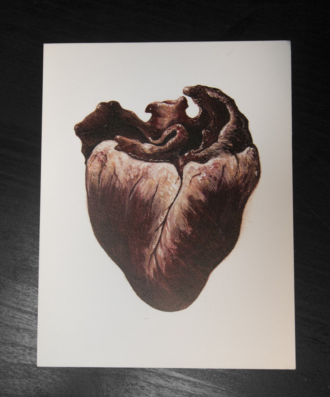 Broken Heart Postcard Print