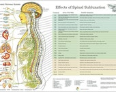 "ANS and Effects of Spinal Subluxation Poster - 24"" X 36"" Chiropractic"