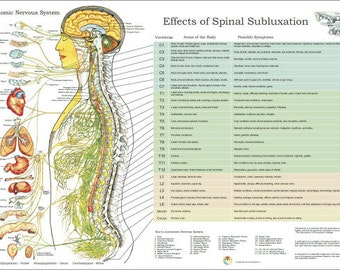 """ANS and Effects of Spinal Subluxation Poster - 24"""" X 36"""" Chiropractic"""