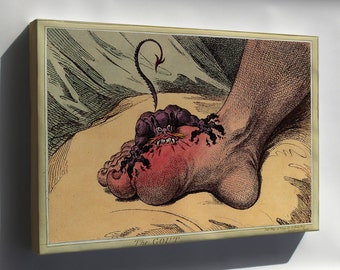 Canvas 16x24; Gout, A 1799 Caricature By James Gillray Alcohol Alcoholism