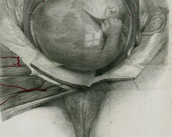 1835 Large Antique PREGNANCY ANATOMY Print, Fetus 6 Months in the Uterine Cavity, Fetus Pregnant, Gestation, Lithograph.