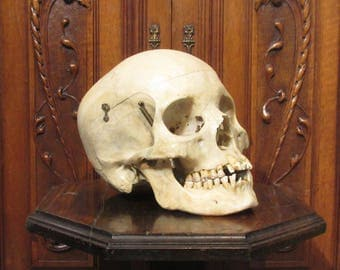 Antique Skull-1930's Medical College - Articulated for Research - Very Good Condition