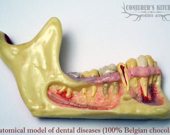 Chocolate Dental Disease