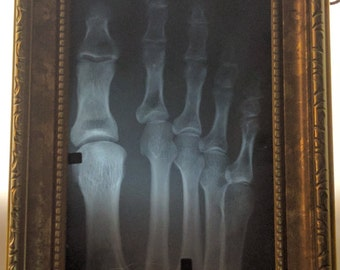 Xray Human Right Toes