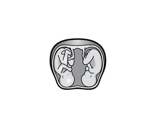 2 tattoos twin fetus / temporary tattoo / baby / pregnancy / pregnancy announcement / tattoo / fake tattoo / black