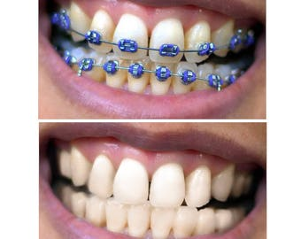 Photoshop braces removal / Braces teeth removal retouch / Retouching / Advanced Photo Retouching service / Digital Delivery
