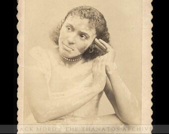 Antique 1890 Cabinet Card Photo Piebald Black Leopard Girl / Sideshow Freak
