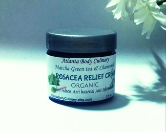 Rosacea Relief cream organic rosacea balm vegan rosacea cream redness relief face cream