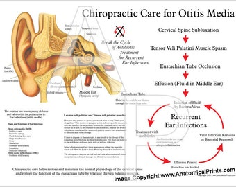 """Chiropractic Care for Otitis Media Poster - 18"""" X 24"""""""