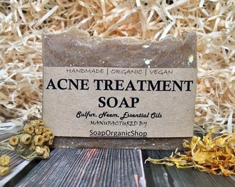 Acne Treatment Soap with herb Essential Oil soap Facial soap Soap with tea tree Handmade soap Teen soap All natural Soap Bar Acne Soap