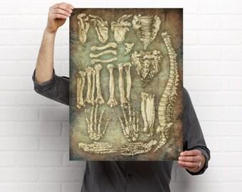 Vintage Bones Medical Artwork