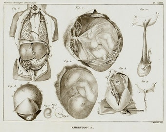 1840 Antique anatomy print, fetus medical chart, medical print, gynecology print, embriology, mom, original antique 176 years old
