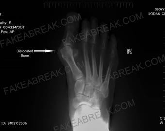 Fake dislocated bone X-Ray,gag gift,fake a break,fake break