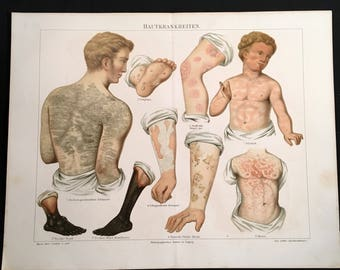 Antique Medical Print - Diseases of the Skin, 19th Century German Lithograph