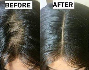 Natural Hair Growth Scalp Treatment Serum Elixir For Hair Loss, Alopecia and Thinning Hair