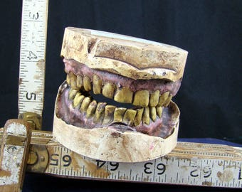 Zombie Dentition Specimens - COM (Customer's Own Mouth)