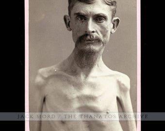 Extremely Rare Sideshow Freak Photo Skeleton Man Poss. One of a Kind Eisenmann Test Shot