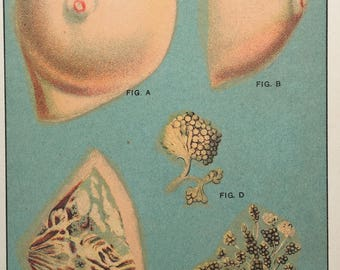 Color Lithograph of Breast