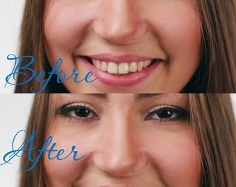 Wedding photo retouch - to whiten teeth, Make your smile shining, Photo retouch of teeth whitening, Professional picture editing