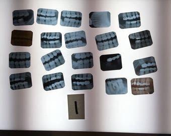 Lot of 20 dental x-ray vintage