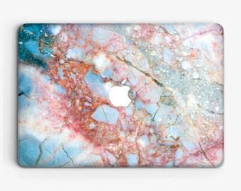 Macbook Air Case Marble Macbook Case Macbook Pro 13 Case Macbook Case Air 13 Macbook Case Air 11 Laptop Case Marble Clear Case AC2039 1